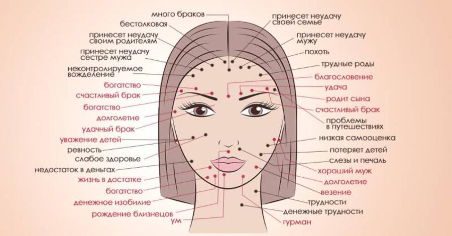 Что означают родинки на лице и теле
